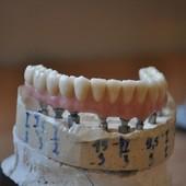 Зуботехнічні роботи